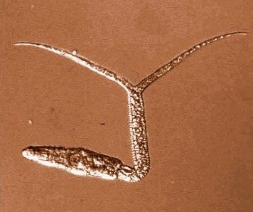 Diplostomum-pseudospathaceum